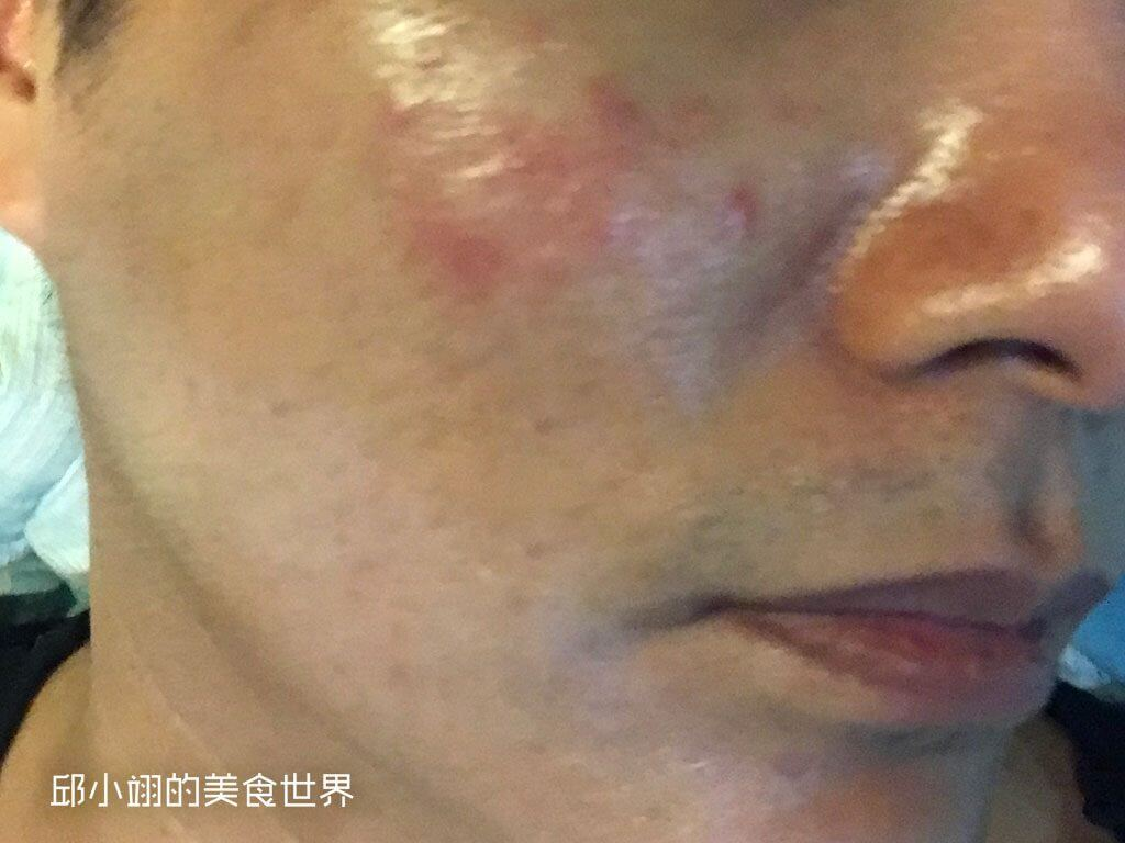 解决皮肤过敏搔痒等问题-理肤宝水全面修复霜开箱试用-4