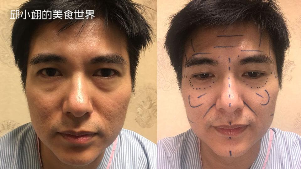 施作手术前之照片,从脸部眼袋以及松垮的肌肤可以看得出来,相当老态龙钟的样子