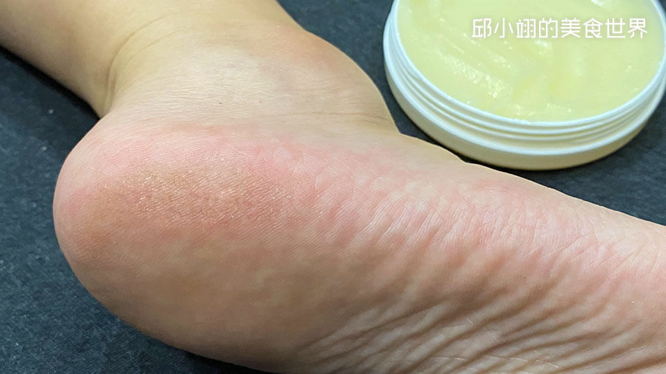 我的腳底板可以很明顯的看見左上角處皮膚乾裂